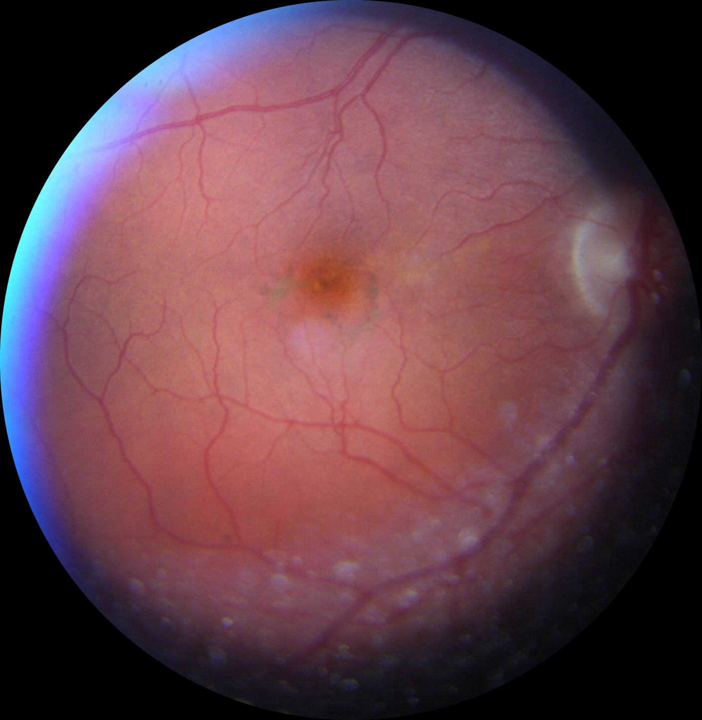 """normal"" retinal photo"